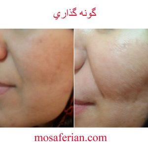 احسن انواع الفيلر المتوفرة والامنة لإبراز الملامح وتجميل الوجه استخداماتها التجميلية لازالة التجاعيد والندب في الوجه ازالة اثار الشيخوخة