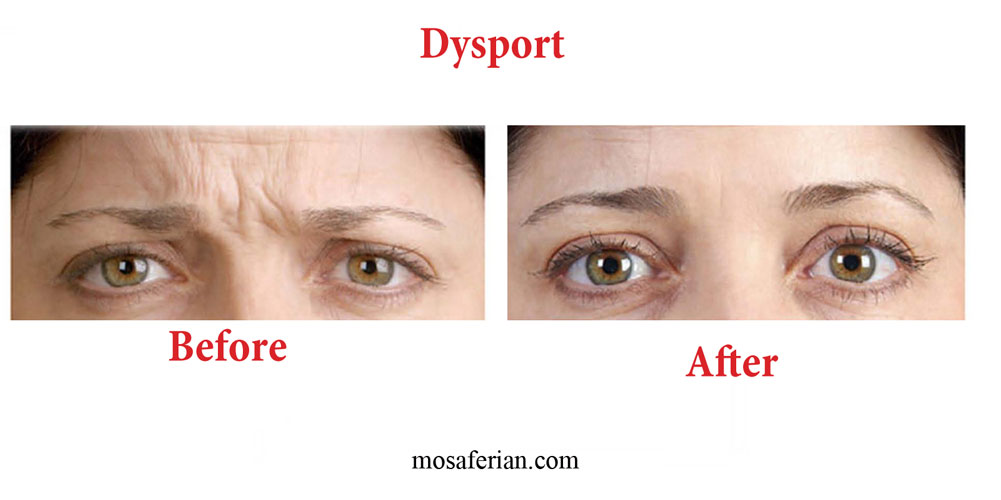 Dysport Cost Is Approximately 1 3 The Of The Botox