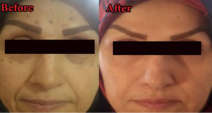 Botox Side Effects Include Pain Swelling Or Bruising At