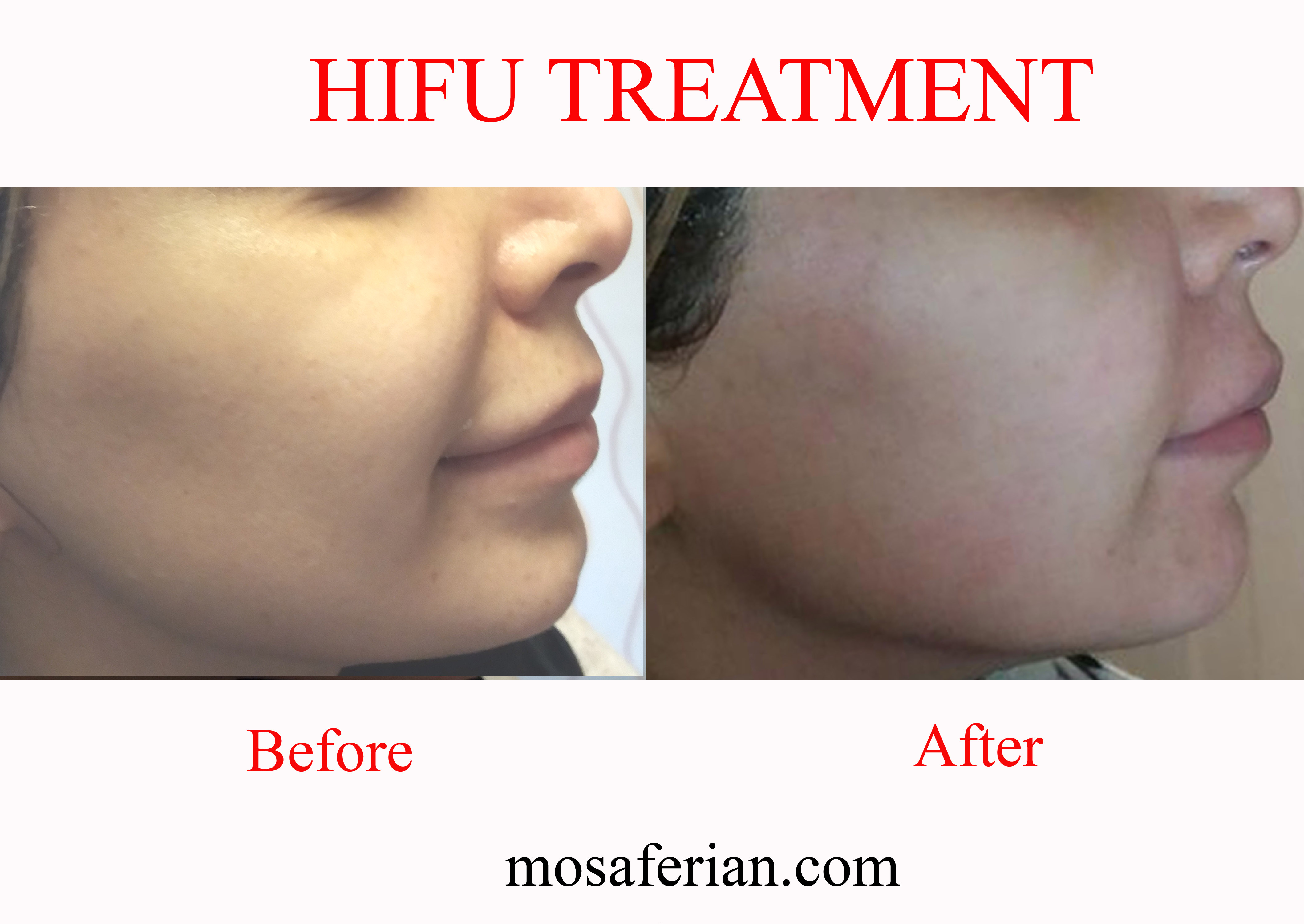 hifu treatment lifts and tightens skin for a non surgical