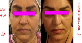 face lift cream