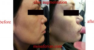 chin injection with filler