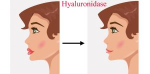 hyaluronidase before and after