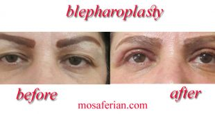 blepharoplasty cost before and after
