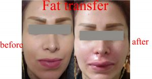 fat transfer before after