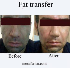 fat transfer cost