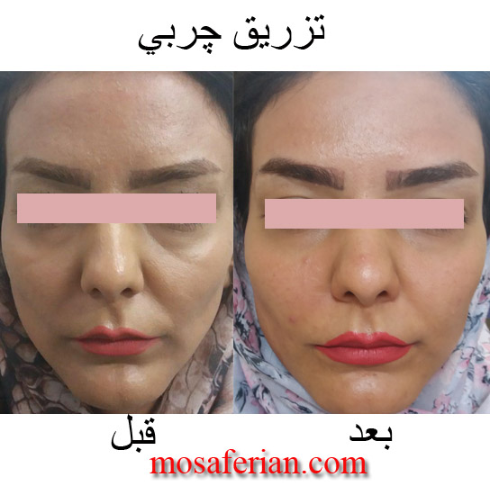 fat injection in face and under eyes
