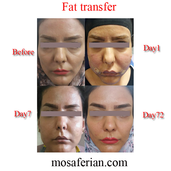 fat transfer to face progress