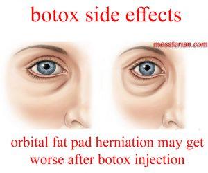 botox side effects fat herniatin