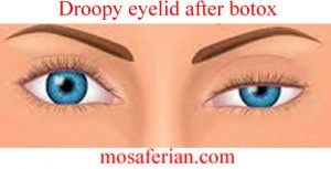 botox side effects droopy eyelid pictures