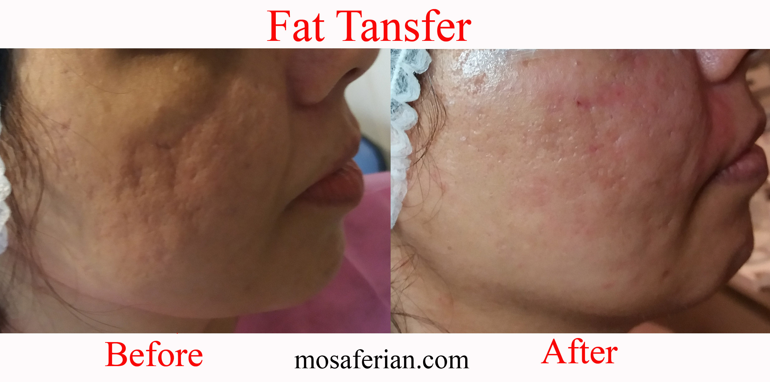 fat tansfer before after