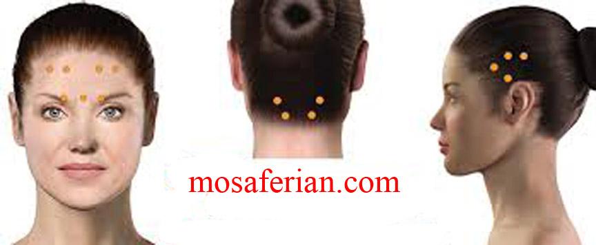 botox migraine treatment