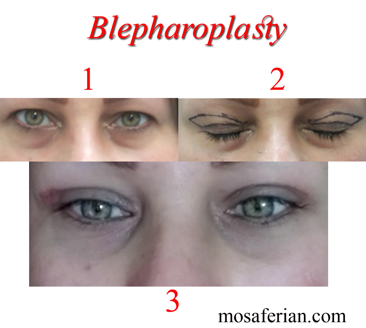 double eyelid surgery - Niayesh Beauty Clinic Double eyelid