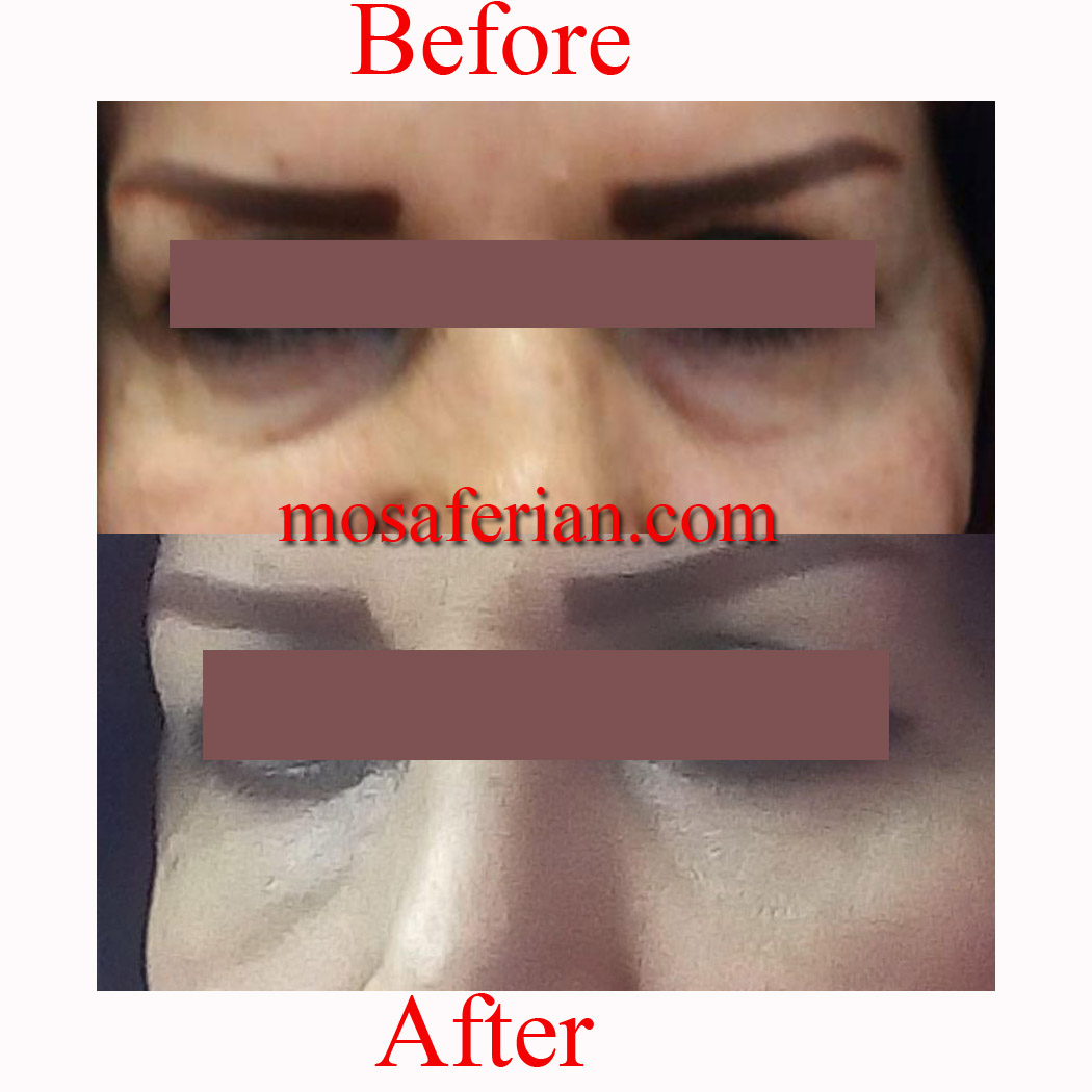 eye bags removal before and after