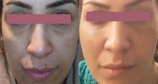 under eye bags fat transfer