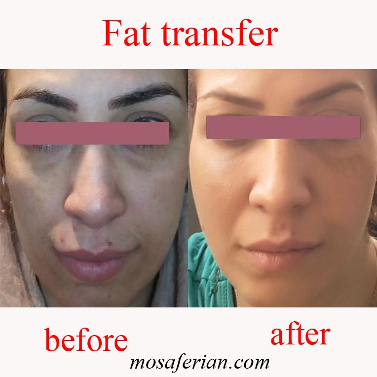 Eye bag fat injection