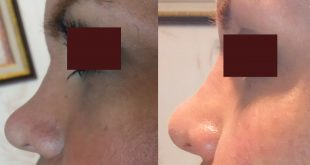 Dermal filler injection in the nose