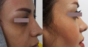 temporal brow lift scar