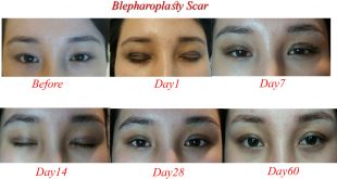 blepharoplasty scars