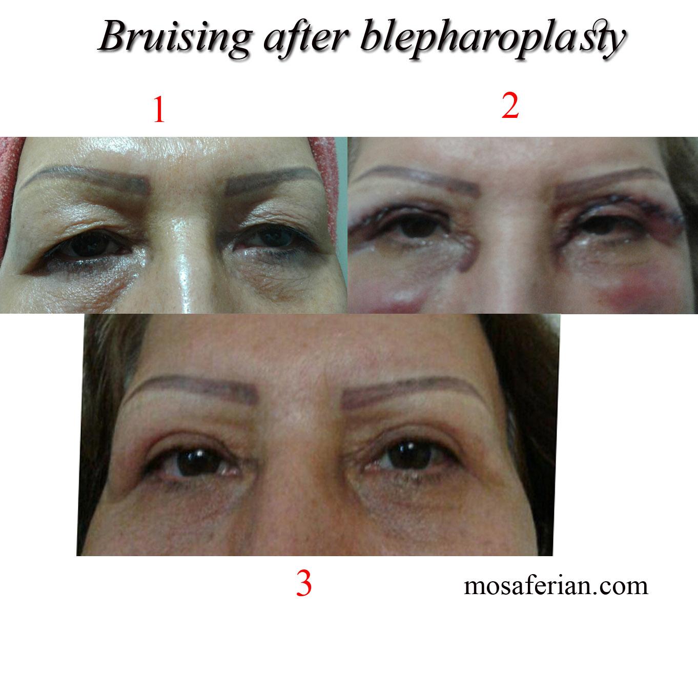bruising after blepharoplasty