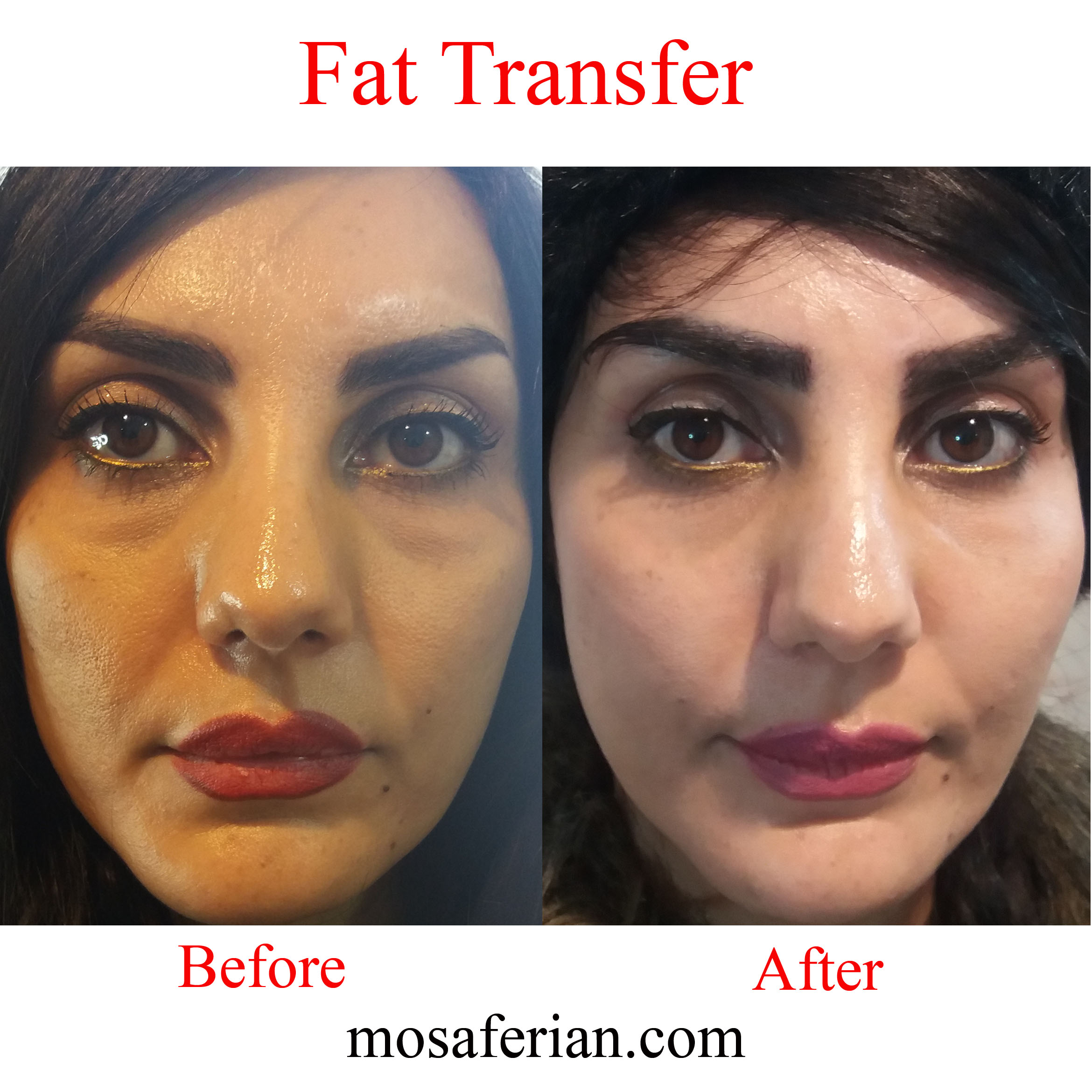 fat grafting face vs fillers before and after