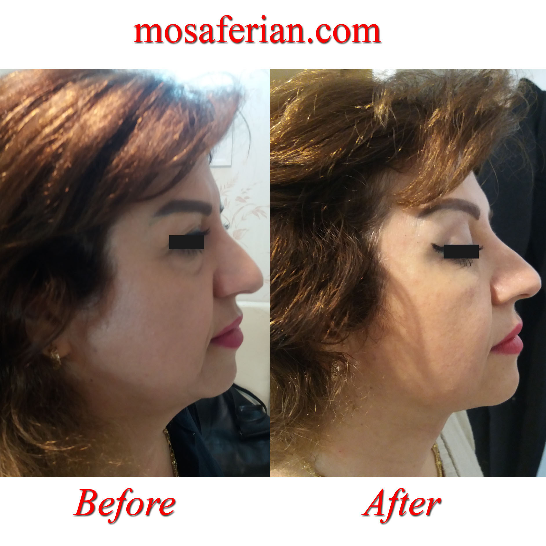 double chin removal before and after