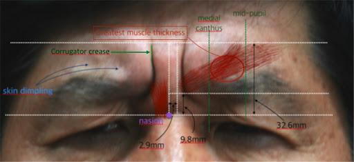 eyelid ptosis after botox