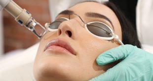laser treatment for acne sccar