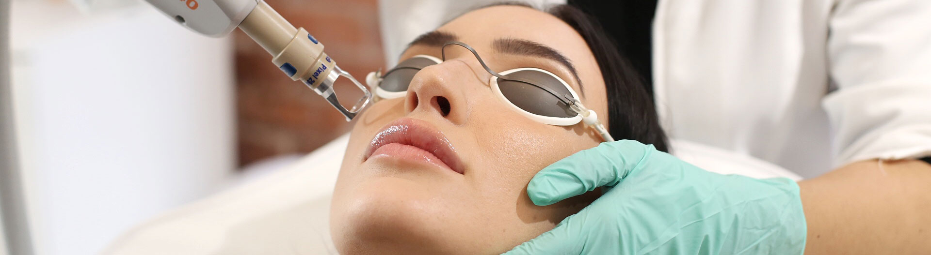 laser treatment for acne scar