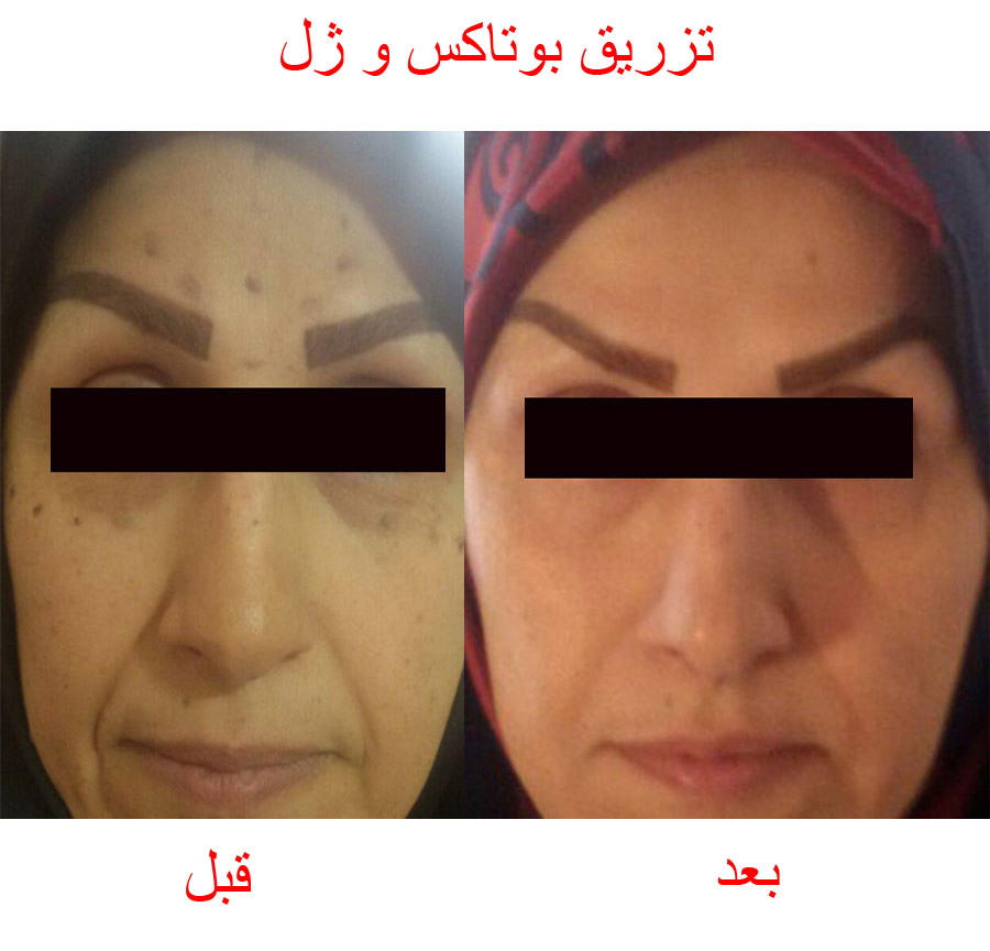 botox cosmetic before after