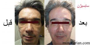 سابسیژن قبل و بعد