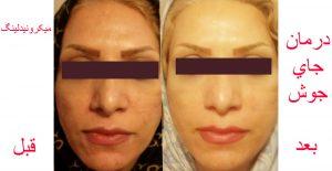 جوانسازی پوست صورت قبل و بعد