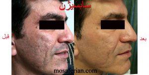درمان جای جوش صورت با سابسیژن