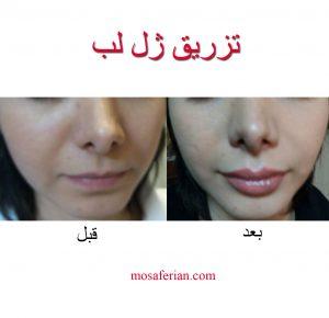 قبل و بعد تزریق ژل لب