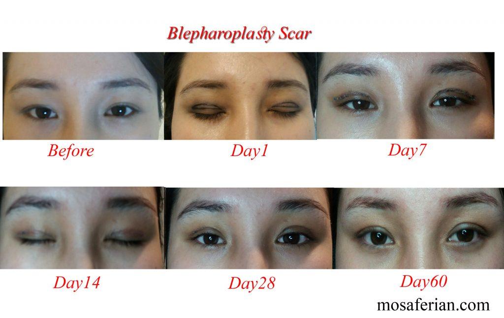 مراحل ترمیم جراحی چشم شرقی