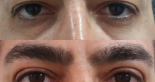 جراحی پلک قبل و بعد