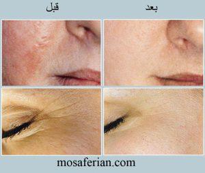 عکس قبل و بعد میکرودرم پوست