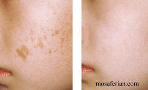 روش میکرونیدلینگ برای سفید شدن پوست