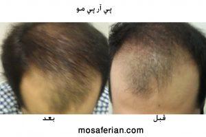 قبل و بعد پی آر پی