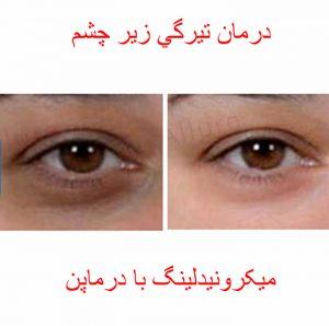 قبل و بعد مزوتراپی