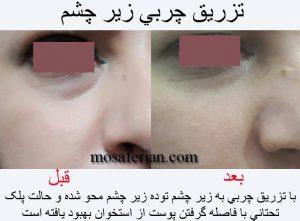 انتقال چربی زیر چشم