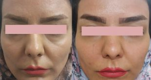 انتقال چربی به صورت قبل و بعد