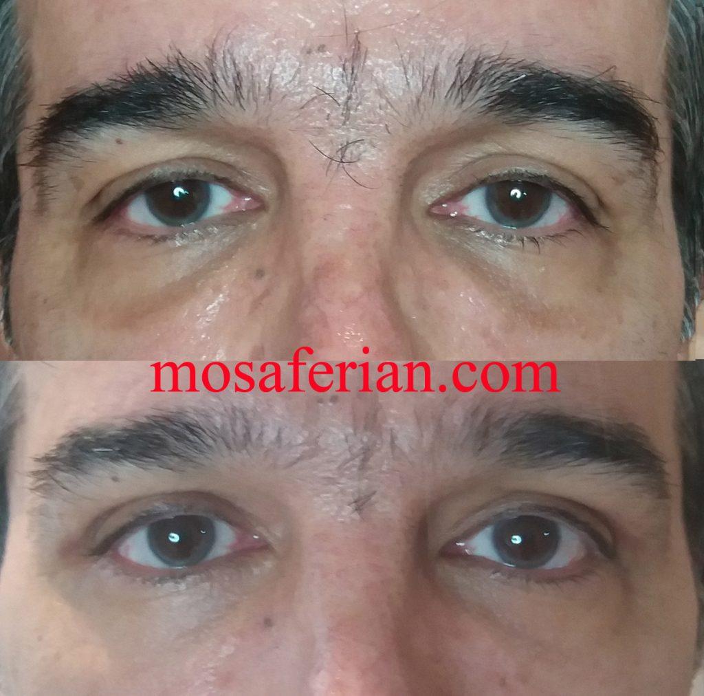 مرحله دوم تزریق چربی زیر چشم