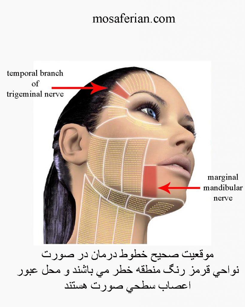 مناطق درمان هایفوتراپی صورت و گردن