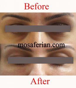 درمان خط زیر چشم قبل و بعد