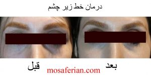 درمان خط زیر چشم