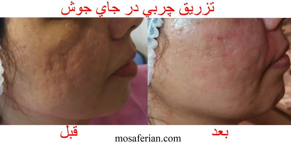 مرحله دوم تزریق چربی صورت