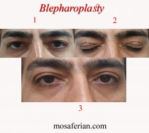 جراحی پلک مردان قبل و بعد