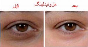 قبل و بعد مزونیدلینگ