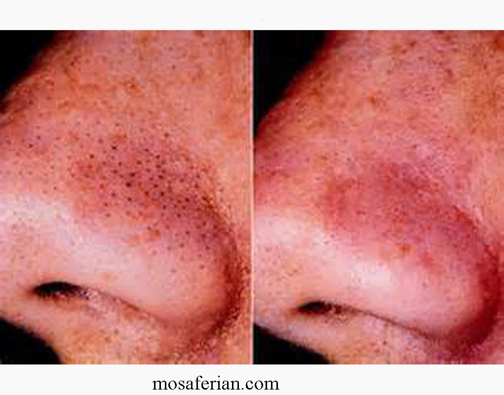 قبل و بعد درمان جوش سرسیاه